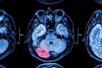 Brain Scan of a Personal Injury Victim with Head Trauma